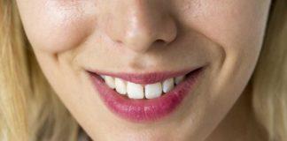 inlumina kit sbiancante denti